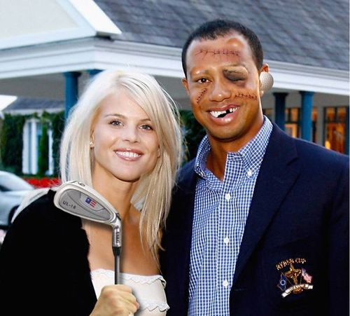 Tiger Woods and wife after golf club beating